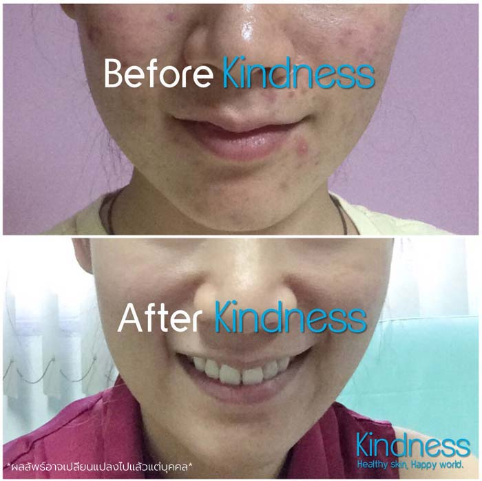 ครีมผิวแพ้ง่าย Kindness before and after