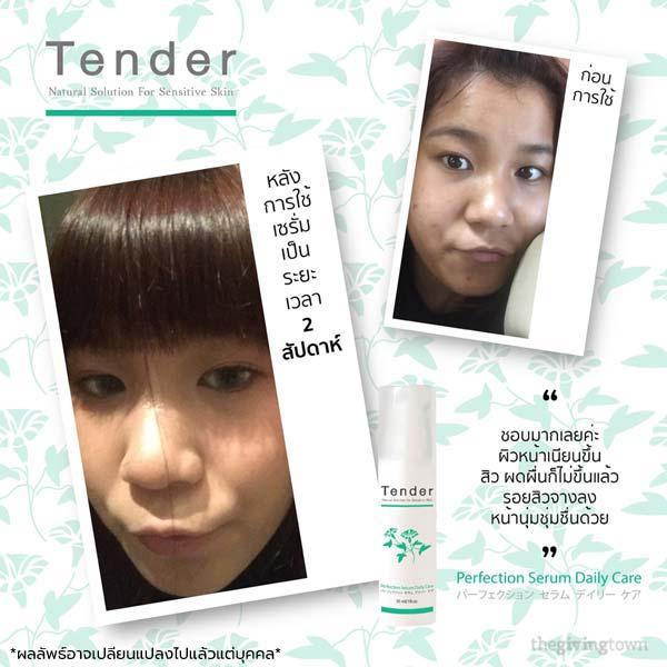 รีวิวสินค้า Tender Skincare Serum เซรั่ม